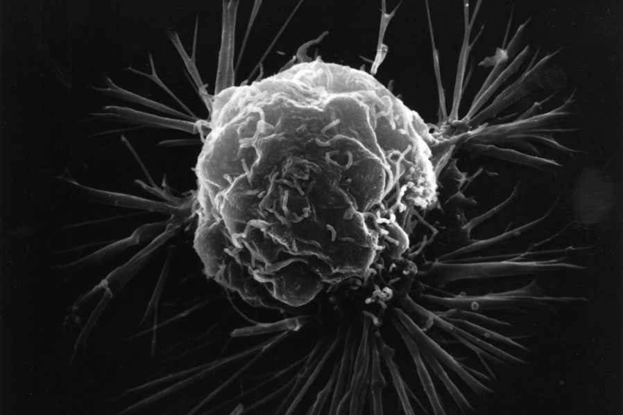 célula de cáncer de mama